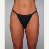 45-54 year old woman treated with Liposuction Revision