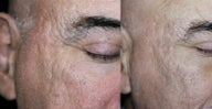 65-74 year old man treated with Acne Scars Treatment
