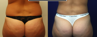 Back View: Power-assisted tumescent liposuction to abdomen, flanks, and lower back