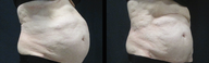 65-74 year old woman treated with SculpSure