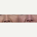 35-44 year old woman treated with Non Surgical Nose Job