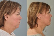Facelift, Neck Lift, Tear Trough Implants
