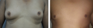 25-34 year old man treated with Male Breast Reduction (trans-nipple approach)