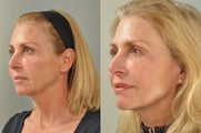 Facelift, Brow Lift, Total FX