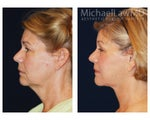 Lower Facial Rejuvenation