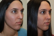 Revision Rhinoplasty. 7 months post-op.