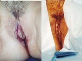 BEFORE AND IMMEDIATELY AFTER LABIAPLASTY