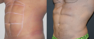 25-34 year old man treated with Vaser Liposuction