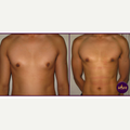 25-34 year old man treated with Abdominal Etching / Lipo Etching
