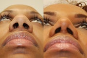 African Rhinoplasty Surgery. 1 month post-op.