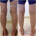 45-54 year old man treated with Vein Treatment
