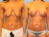 Mastopexy-Augmentation - Breast Lift with Breast Implants