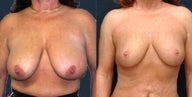 Breast Reduction - 7 years result