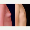 25-34 year old man treated with Male Breast Reduction