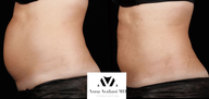 35-44 year old woman treated with SculpSure