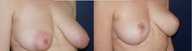 Right Oblique View: Breast Lift patient, female, 2 years post-op. Reduced left-side breast asymmetry