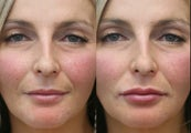 37 year old female lip augmentation with Juvederm.