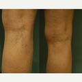 Spider Vein Treatment of the Back of the Legs with 1064 YAG Laser
