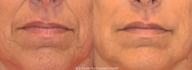 Juvederm for Smile Lines and Lip Lines