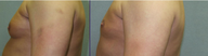 35-44 year old man treated with Smart Lipo