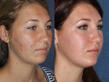 PDT & Fraxel Restore Treatments Before and After