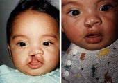 Cleft Lip, Severe Right Complete Repaired at age 2 months with Rotation Advancement
