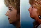 Rhinoplasty Finesse for slight tip and bridge adjustments after trauma
