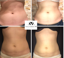 25-34 year old woman treated with SculpSure