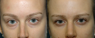25 year old woman with lower blepharoplasty with fat repositioning