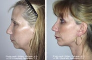 Face lift with chin implant side view