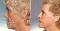 Phenol peel following full face lift for severe facial wrinkling