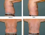 45-54 year old man treated with Liposuction