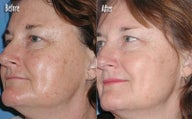 IPL for Age Spots