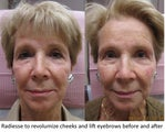 Radiesse facial rejuvenation - Revolumization of Cheeks and Eyebrow Lift