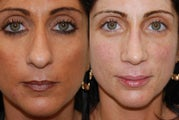 Rhinoplasty Surgery and Lip Augmentation