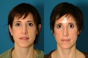Upper blepharoplasty and fat transfer to midface