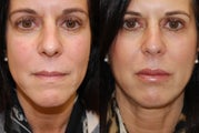 Lip Augmentation with Silikon-1000. 2 treatments.