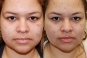 Correction of Acne Scarring with Silikon-1000