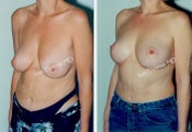 Mastopexy-Breast Lift