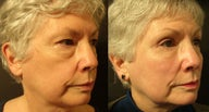 Cheek Lift
