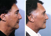 Before and After Facelift, Upper & Lower Blepharoplasty