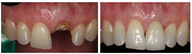 Single Tooth Dental Implant