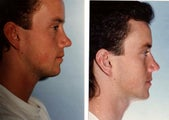 Rhinoplasty Male Secondary Correction of Saddle Nose and Bulbous Tip