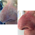 45-54 year old man with facial spider veins treated with VeinGogh