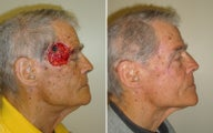 Before and After Forehead advancement Flap and Cheek Transposition Flap to Right Temple Mohs Defect