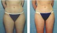 24 year old who had Liposuction outer thighs
