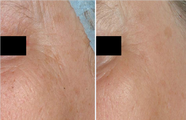 Before and after Non Ablative No Down Time Laser Wrinkle Removal