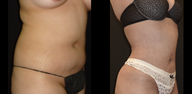 18-24 year old woman treated with Liposuction