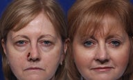 Upper and lower blepharoplasty with nasal Mohs repair using forehead flap