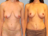 Mastopexy-Augmentation - Brreast Lift with Breast Implants